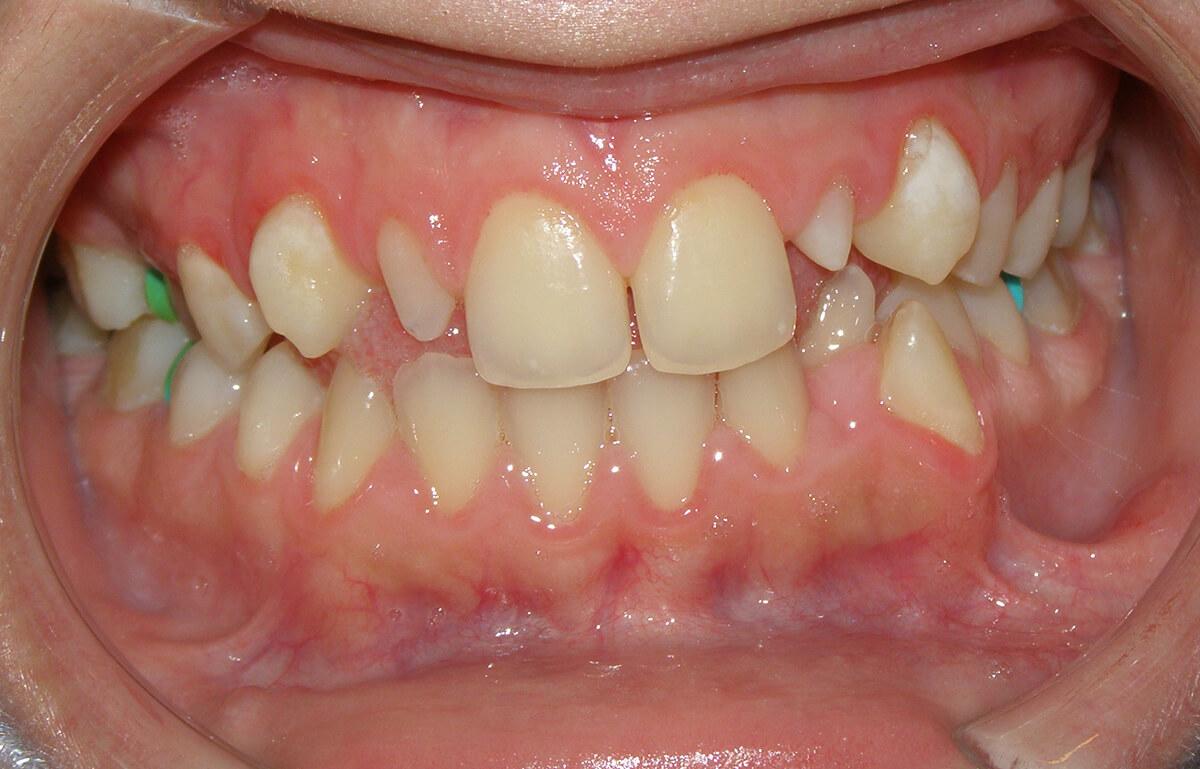 دندانهای بد شکل