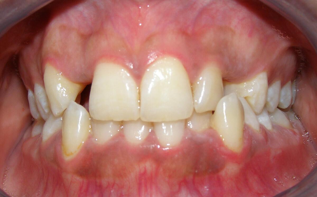 دندانهای غائب