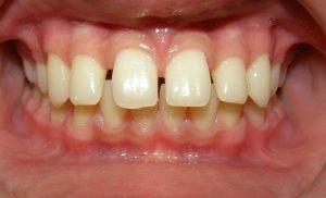 دندانهای فاصله دار