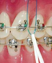 نخ دندان1